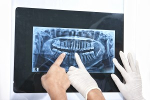 Pediatric Dentist examining an x-ray of teeth