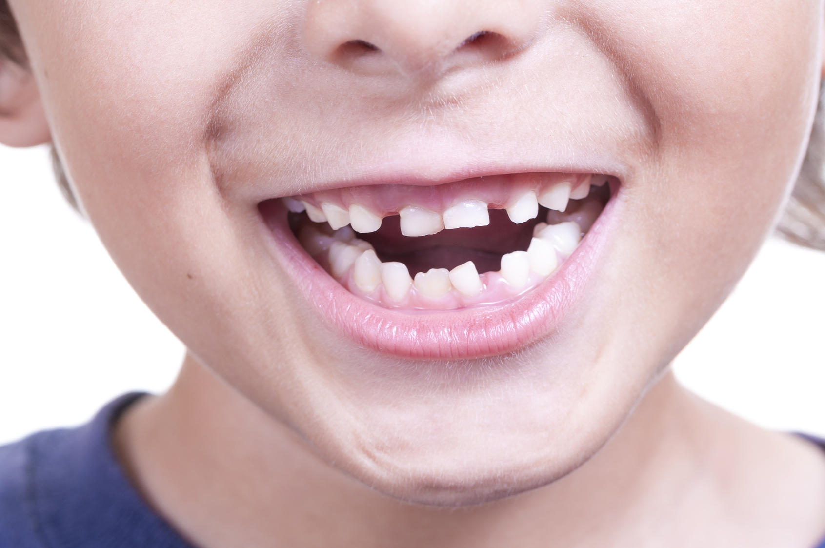 Teaching Your Kids about Gingivitis